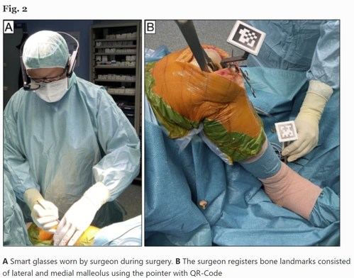 A: Vuzix Smart Glasses worn by the surgeon during surgery. B: The surgeon registers bone landmarks  consisting of lateral and medial malleolus using the pointer with QR-Codes.