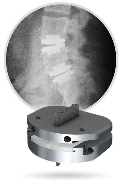 prodisc L Lumbar Total Disc Replacement