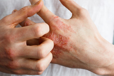 A case of moderate to severe atopic dermatitis shown on patient. (CNW Group/Allergan, an AbbVie Company)