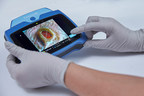 Launch of New MolecuLightDX™ Device to Enable Point-of-Care...