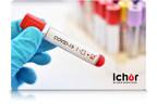 艾可血液服务与梅奥诊所实验室合作,扩大阿尔伯塔省的业务规模,以管理对定量COVID-19抗体检测的强劲需求