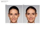 Galderma Announces FDA Approval of Restylane® Refyne and Restylane® Defyne Dermal Fillers for Treatment of