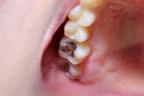 Internationale Gruppe unterstützt globale Bemühungen, den Einsatz von Quecksilber in der Zahnmedizin zu beenden