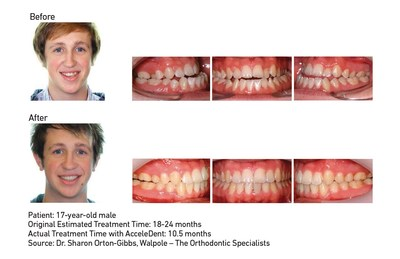 """The Journal of Clinical Orthodontics published results from """"Accelerated Orthodontics Using Pulsatile Forces in Orthognathic Surgical Patients,"""" a case series demonstrating accelerated treatment when incorporating AcceleDent into combined orthodontic and orthognathic surgery cases. In Case 1 of the series, Dr. Sharon Orton-Gibbs treated a 17-year-old male patient with AcceleDent. His estimated treatment time was 18-24 months, but with AcceleDent he completed treatment in 10.5 months."""