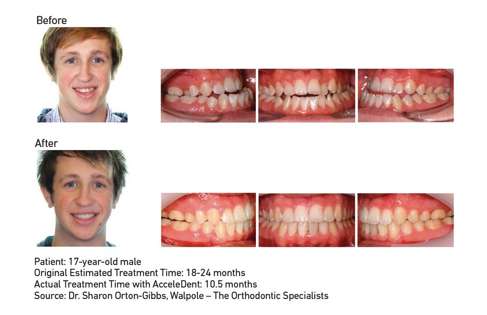 "The Journal of Clinical Orthodontics published results from ""Accelerated Orthodontics Using Pulsatile Forces in Orthognathic Surgical Patients,"" a case series demonstrating accelerated treatment when incorporating AcceleDent into combined orthodontic and orthognathic surgery cases. In Case 1 of the series, Dr. Sharon Orton-Gibbs treated a 17-year-old male patient with AcceleDent. His estimated treatment time was 18-24 months, but with AcceleDent he completed treatment in 10.5 months."