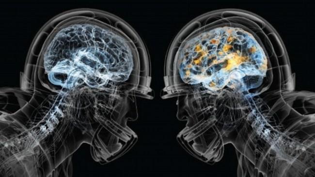 Concussion Technology
