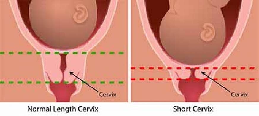 In a typical pregnancy, the average cervical length at 24 weeks gestation is 3.5 cm. A short cervical length at mid-pregnancy is the strongest indicator of a pregnant woman's risk of preterm birth. Image credit: National Institutes of Health, 2011