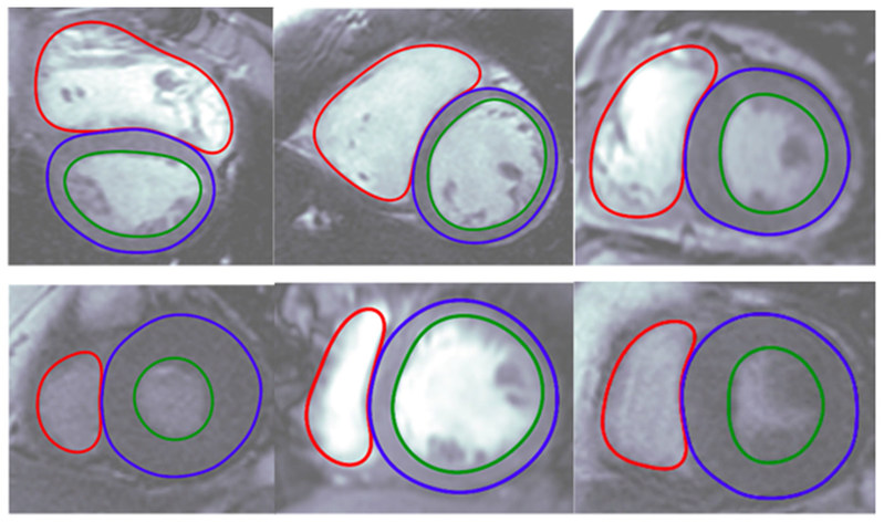 Unlike traditional medical imaging software, Arterys Cardio DLTM uses deep learning, a form of artificial intelligence, to automate time-consuming analyses and tasks that are performed manually by clinicians today. The physician can edit the automated contours if desired. These images show the Cardio DLTM generated contours of the insides and outsides of the ventricles of the heart. The software can process a scan in just 10 seconds, compared to manual contouring performed by clinicians.