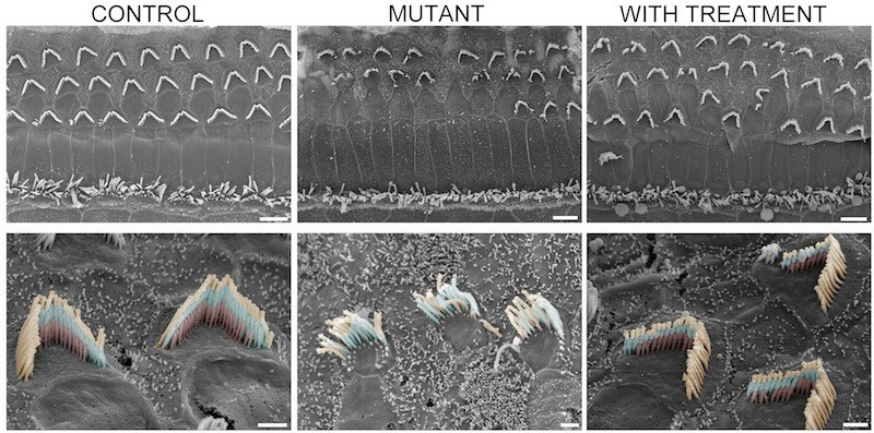 Hair bundle health: Unaffected mice, at left, have sensory hair bundles organized in 'V' formations with three rows of cilia (bottom left). This orderly structure falls apart in the mutant mice (middle column), but is dramatically restored after gene therapy treatment. (Credit: Gwenaelle Geleoc and Artur Indzkykulian)