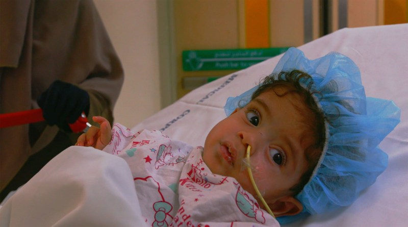 Baby Mohamed pre surgery in October 2016 (PRNewsFoto/Sidra Medical and Research Cente)