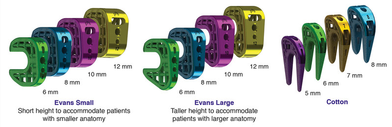 Titan 3-D Wedge System Family of Implants
