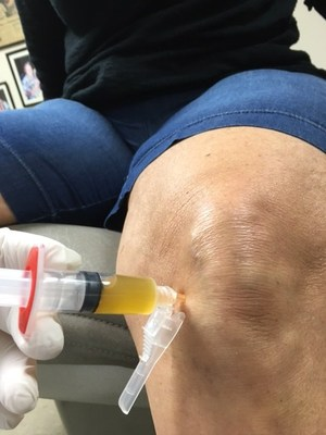 Knee PRP Injection for pain due to meniscus tear