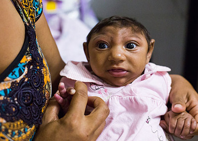 Zika infection in pregnant women can cause neurological birth defects including microcephaly, a condition in which a child is born with an abnormally small head as a result of incomplete brain development. Photo credit: Barcroft Media / Barcroft Media via Getty Images.