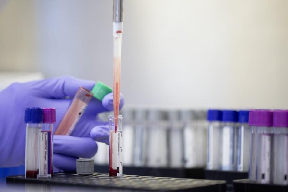 QuantiFERON-TB blood test (PRNewsFoto/QIAGEN N.V.)