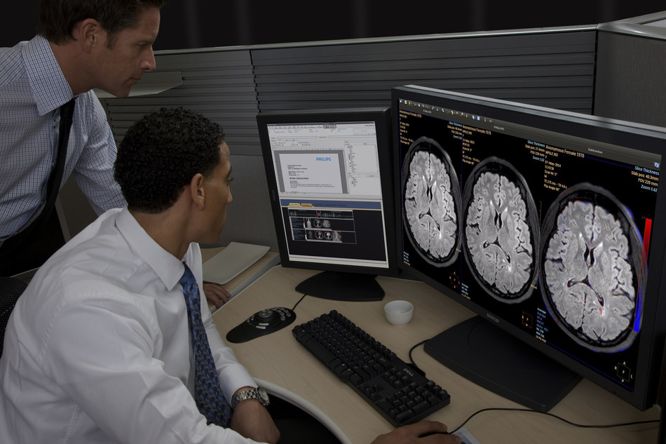 IntelliSpace Portal offers Longitudinal Brain Imaging (LoBI ), an application that has been optimized for the interpretation of brain MRI scan and aims to facilitate the longitudinal evaluation of neurological disorders helping clinicians to monitor disease progression.