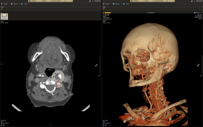 Illumeo's Findings Presenter changes how Radiologists can share clinical information. It integrates islands of patient information and enables dynamic and tailored output and more informed and meaningful discussion.