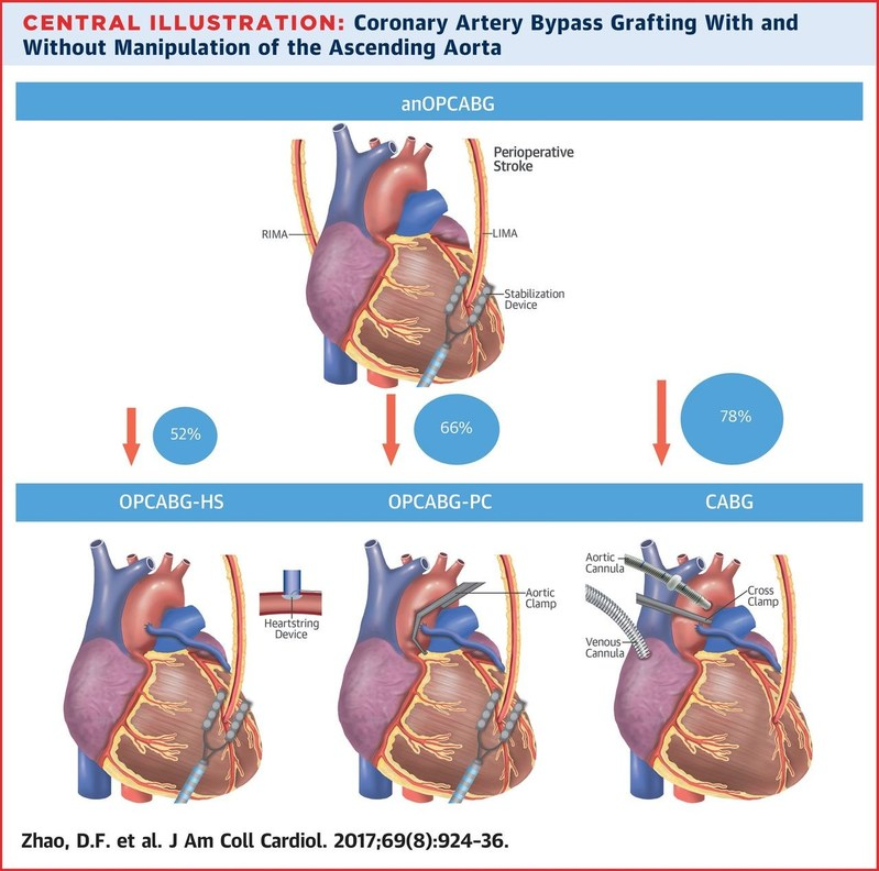Four surgical methods of coronary artery bypass grafting with increasing degrees of aortic manipulation. Percentages pictured represent the relative decrease in risk of perioperative stroke using anOPCABG compared to the other techniques. CABG = coronary artery bypass grafting with cardiopulmonary bypass; anOPCABG = anaortic off-pump coronary artery bypass grafting; LIMA = left internal mammary artery; OPCABG-HS = off-pump coronary artery bypass grafting with the Heartstring system; OPCABG-PC = off-pump coronary artery bypass grafting with partial clamp; RIMA = right internal mammary artery.