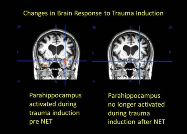 The parahippocampus is no longer active after the patient had received NET (right).