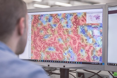 Philips TissueMark is a research application that helps in automatic identification of tumor region and subsequent quantification for macro dissection.