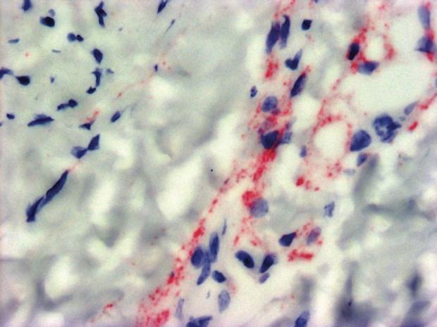 Neuronalinfection, day35 CourtesyDanielStreblowPh.D./OHSU