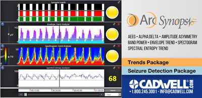 Simplify EEG analysis. Arc Synopsis helps you recognize critical points in the EEG including seizures, cerebral function background patterns, sleep/wake cycling and burst rate that help assess cerebral function, predict outcomes, and make informed treatment decisions. Cadwell: Helping you help others. www.cadwell.com