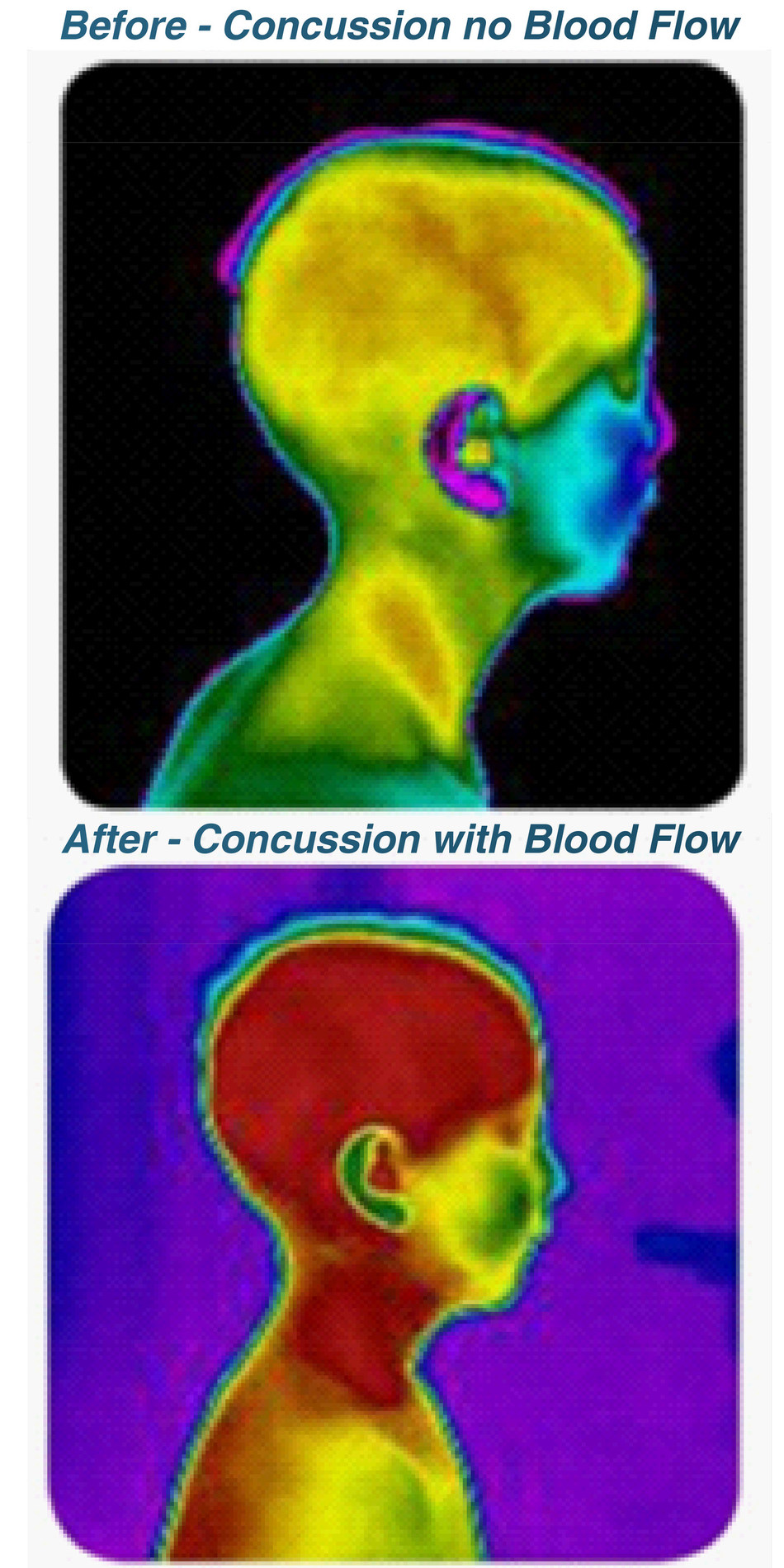 Thermography images of a concussion patient pre and post Cranial Suture Release Therapy (CSRT).