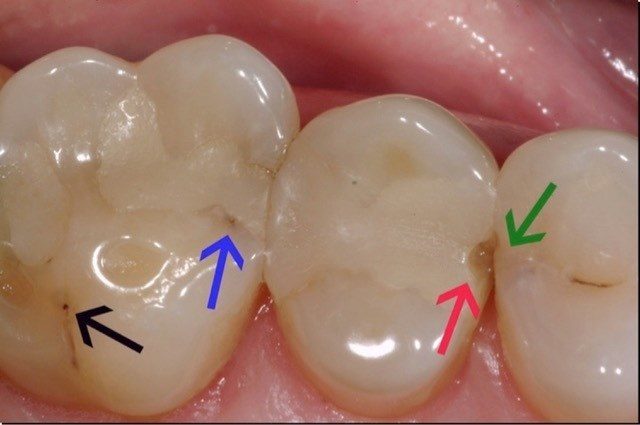 Traditional composites (white dental fillings) only last 5.7 years on average. The arrows show where traditional white composite fillings are breaking down, ultimately causing more tooth decay and requiring a new filling. Image courtesy of Dr. David Clark.