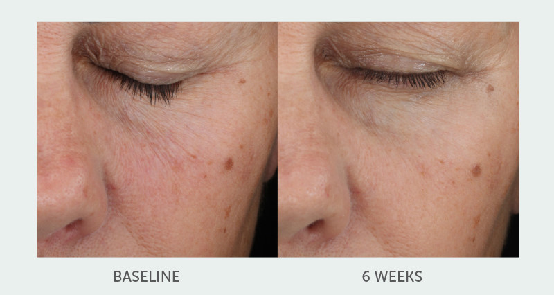 Topix Announces New Age Defying Retinol Treatment Serum. RetinolForte is clinically proven to show significant improvement in visible fine lines and wrinkles.