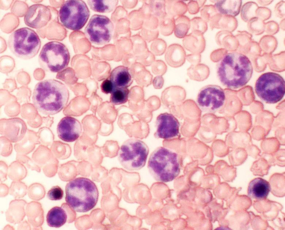 This image shows treatment-resistant chronic myeloid leukemia cells (CML) in laboratory mouse models. Researchers report March 20 in Nature Medicine that two signaling proteins in certain cancer cells make them resistant to chemotherapy treatment. Inhibiting these proteins combined with chemotherapy eradicated CML- and residual disease cells that can refuel the blood cancer - in laboratory models of leukemia.