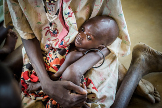 In South Sudan, Ayei Wier, mother of 5, saw the signs of famine back in 2015 when she watched her malnourished baby Malou suffer from hunger. (CNW Group/World Vision Canada)