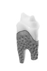 Milled REPLICATE Tooth, commercially available