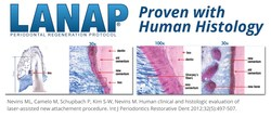 The LANAP protocol is clinically and histologically proven to reverse the destruction of gum disease, resulting in True Periodontal Regeneration.