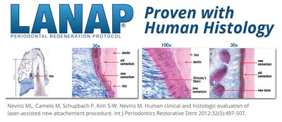 The LANAP protocol is clinically and histologically proven to work, resulting in True Regeneration.