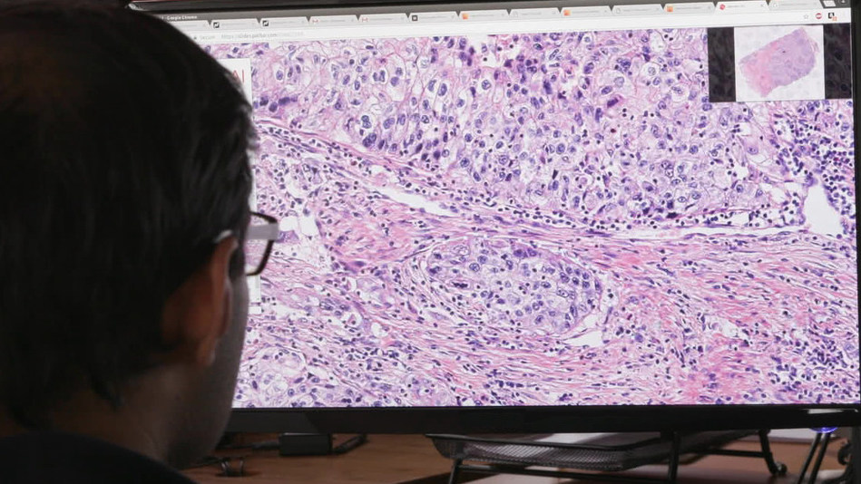 Philips and PathAI aim to build deep learning applications in computational pathology to better inform diagnostic and treatment decisions.