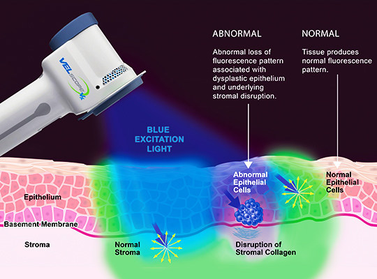 The VELscope Oral Cancer screening utilizes ultraviolet light to detect cancerous and pre-cancerous cells.