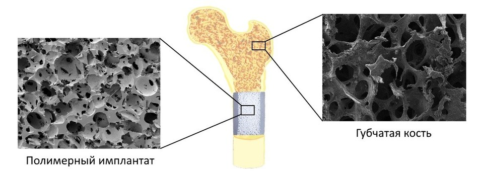 The structure of implants created from Ultra-high molecular weight polyethylene is identical bone-s structure (PRNewsFoto/NUST MISIS)