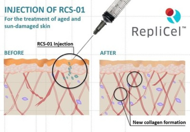 RCS-01 Skin Before and After (CNW Group/RepliCel Life Sciences Inc.)