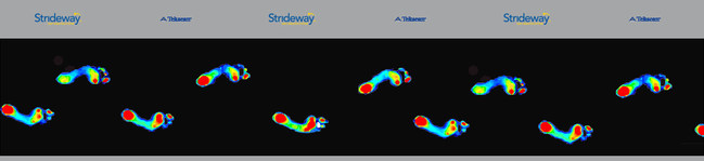 Strideway provides key insights into gait analysis including pressure, force and spatial parameters.