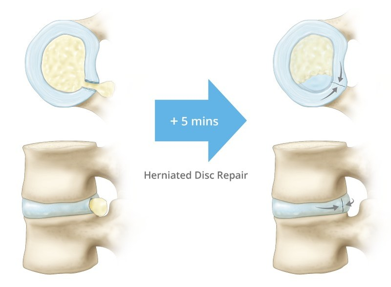 The AnchorKnot® Tissue Repair System for herniated disc repair. (CNW Group/Anchor Orthopedics)