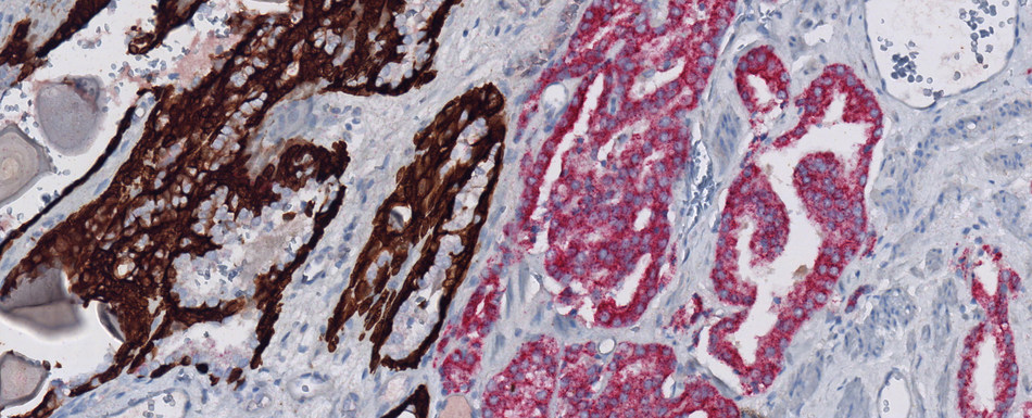 Prostate carcinoma dual stained with anti-p504s (SP116) Rabbit Monoclonal Primary Antibody in red, and VENTANA Basal Cell Cocktail (34ßE12+p63) in brown
