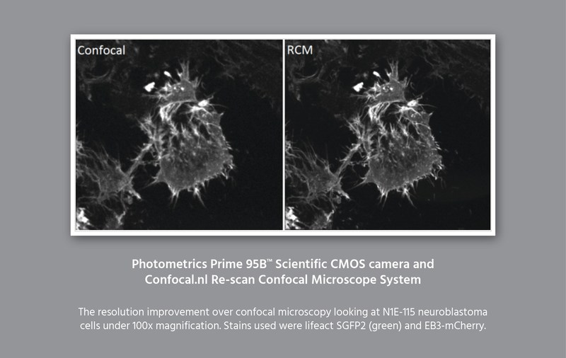 Photometrics and Confocal.nl Announce a New Collaboration in Sub Diffraction-Limited Confocal Microscopy