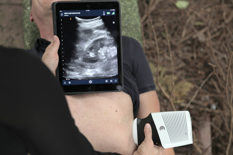 Clarius ultrasound scanners are useful for physicians to help triage critically ill patients and to diagnose problems such as lung collapse, bleeding in the abdomen and broken bones and dislocations.