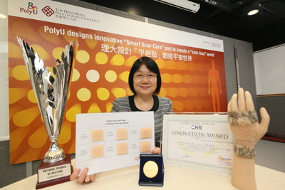"""The """"Smart Scar-Care"""" pad designed by Professor Cecilia Li-Tsang in the Department of Rehabilitation Sciences, PolyU, serves the dual functions of reinforcing pressure and occlusion. It can treat hypertrophic scars from burns, surgeries and trauma. (PRNewsfoto/The Hong Kong Polytechnic Univer)"""