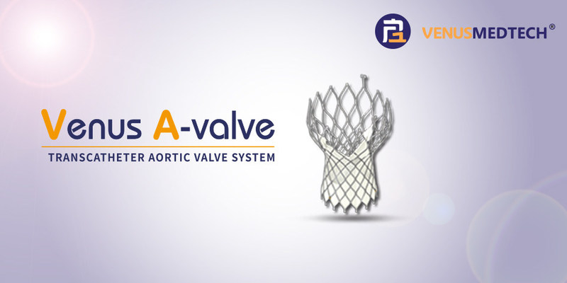 """Venus A-valve - has been approved by China Food and Drug Administration (""""CFDA"""")"""
