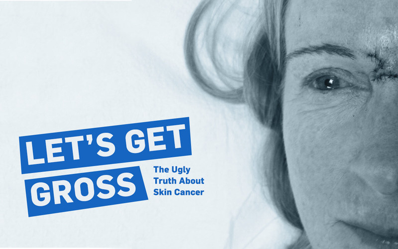 Coolibar, whose mission is to keep the world safe from sun damage, designed the campaign to build community by sharing the ugly truth of survivor stories. Read Beth's story, pictured. https://blog.coolibar.com/bethletsgetgross