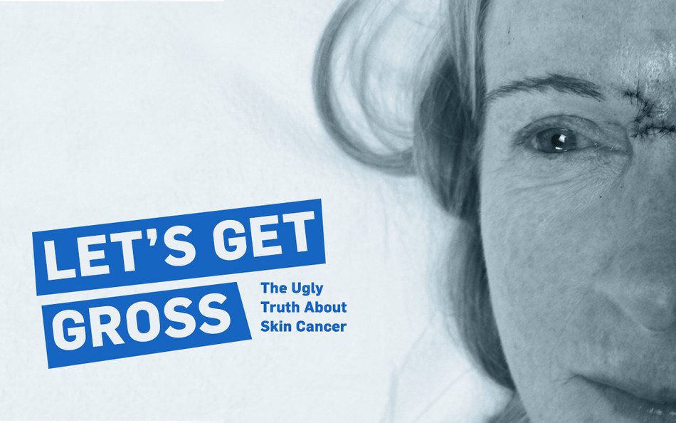 Coolibar, whose mission is to keep the world safe from sun damage, designed the campaign to build community by sharing the ugly truth of survivor stories. Read Beth's story, pictured. http://blog.coolibar.com/bethletsgetgross