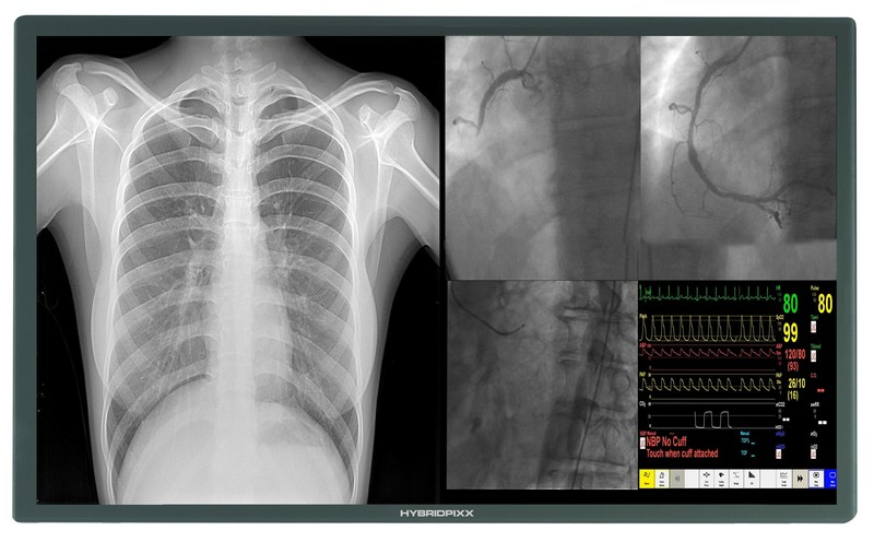 Latest 4K 8MP HD Cath Lab Display Monitor Screen Available