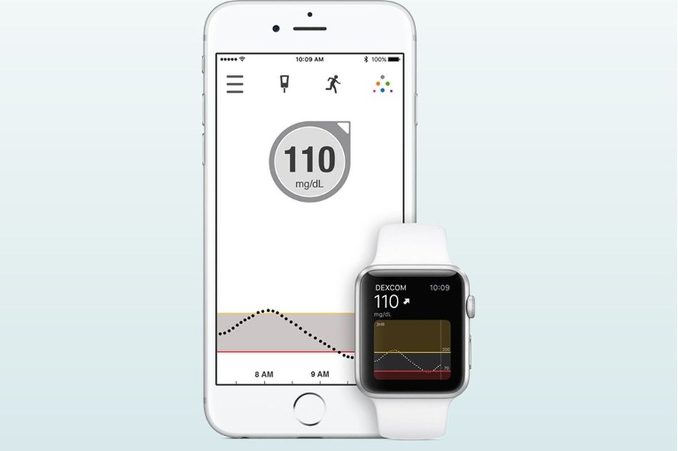 Dexcom G5® Mobile Continuous Glucose Monitoring (CGM) System now Compatible with Apple Watches in Europe (PRNewsfoto/Dexcom, Inc.)