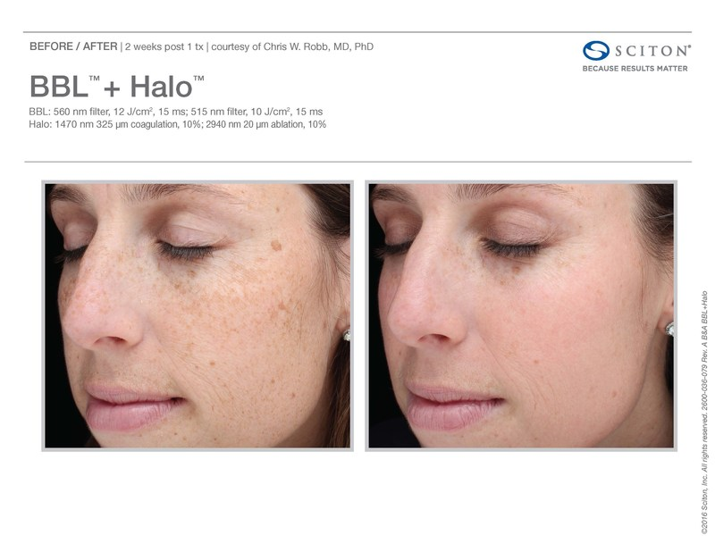 Before and after one Halo treatment