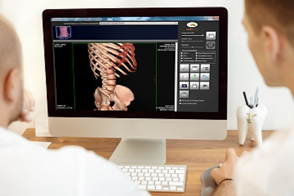 Doctors reviewing image on MatrixRay